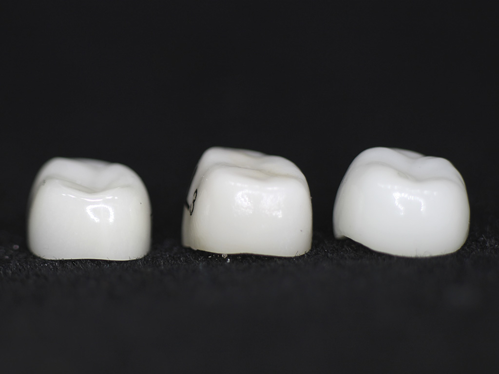 Prefabricated Crowns For Primary Molars Scottish Dental Magazine