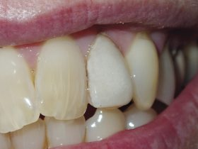 FIGURE 2: A middle-aged lady presented with a very white and unsightly porcelain veneer