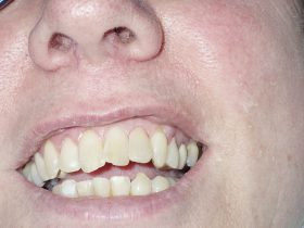 FIGURE 12: A more natural and aesthetically pleasing veneer