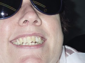 FIGURE 3: The patient requested to have the existing veneer replaced