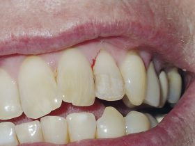 FIGURE 4: Old veneer is removed. Note that some veneer cement is still adhered to the labial surface of the tooth