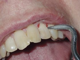 FIGURE 5: Air abrasion is used on the labial surface of the tooth