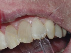 FIGURE 9: After administering the dentine composite to the tooth surface, the template is carefully seated before removing any excess material