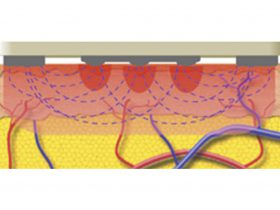 FIGURE 3: Representation of alternating current flowing between the positive (central) electrodes and negative (side) return plates