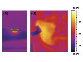 FIGURE 4: In vivo thermal view showing the initial application of Forma handpiece (A) and following treatment, a uniform heat distribution at 43°C across an entire right cheek (B).