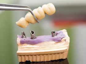 FIGURE 2 Extended implant fixed partial denture