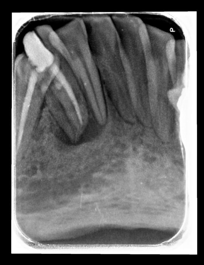 Periapical lower anterior